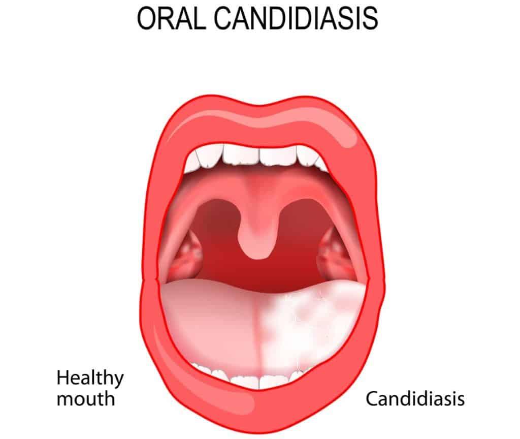 candidiasis lengua