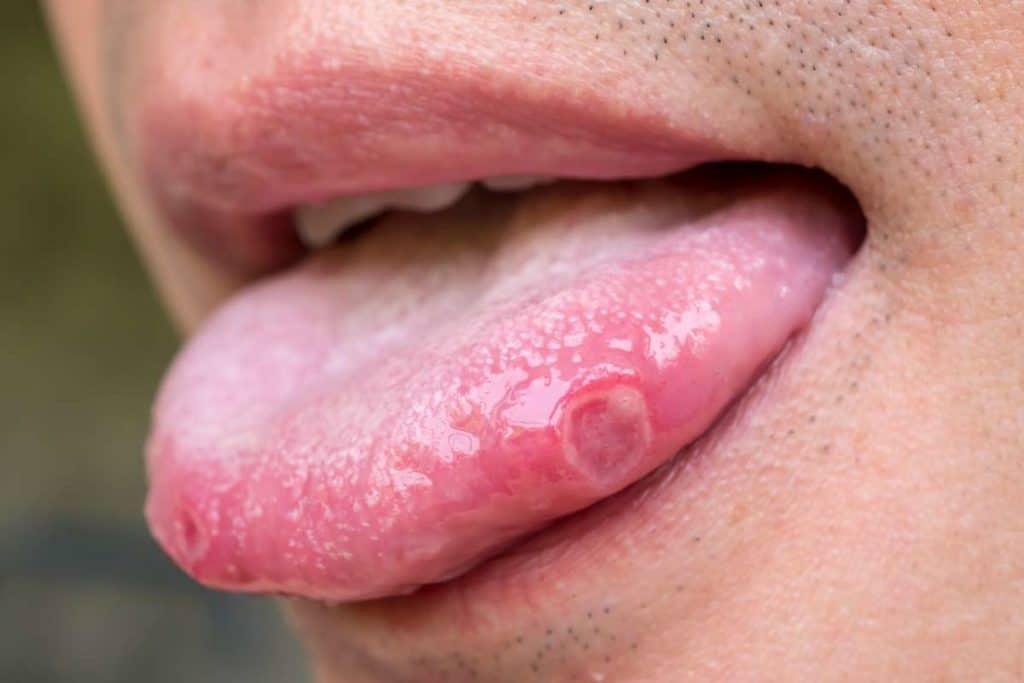 manchas blancas en la lengua