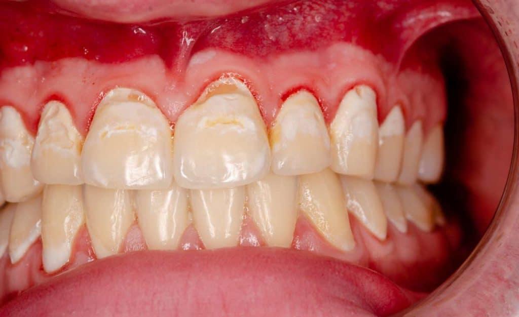 encias moradas por gingivitis