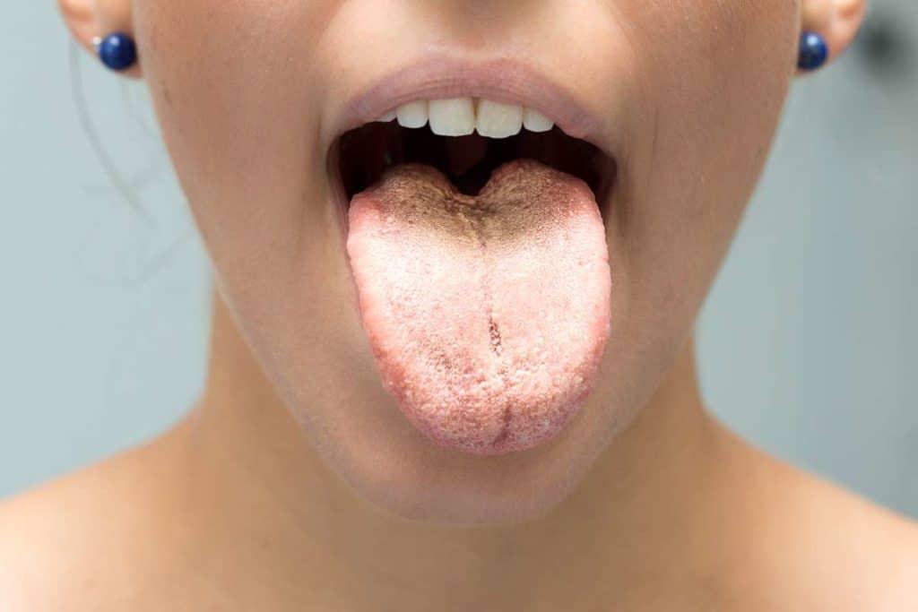 Candidiasis oral remedios caseros