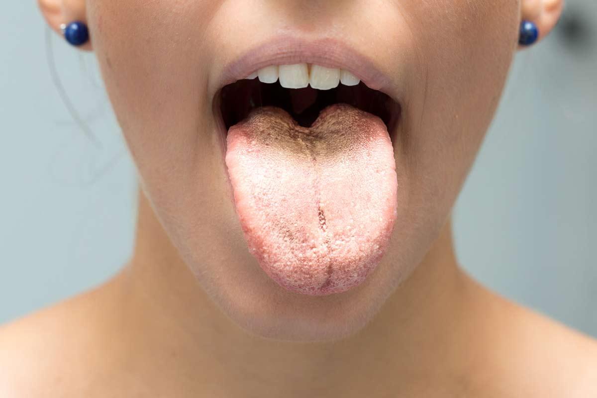 remedio efectivo para candidiasis bucal