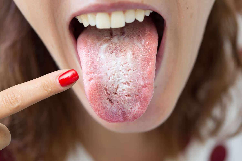 candidiasis oral y bicarbonato de sodio
