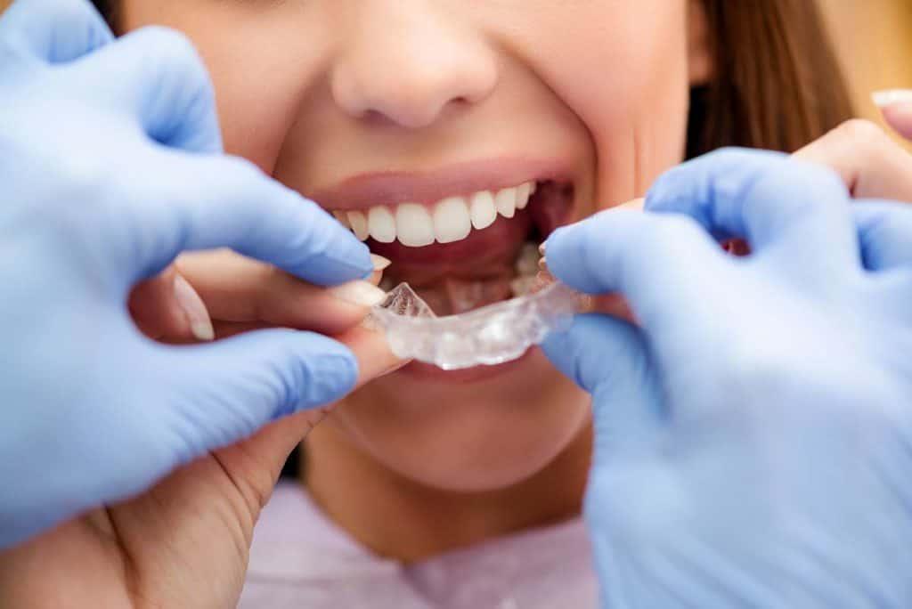 ortodoncia invisible precios