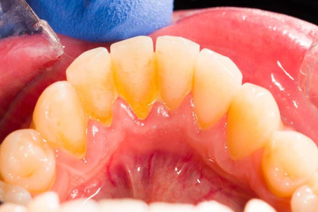 sarro dental