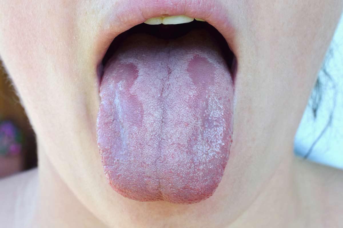 candidiasis bucal en adultos tratamiento