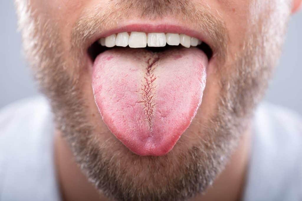 lengua amarilla