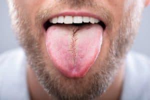 Porque la lengua se pone blanca y amarilla