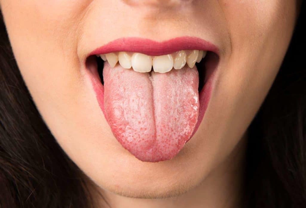 lengua amarillenta